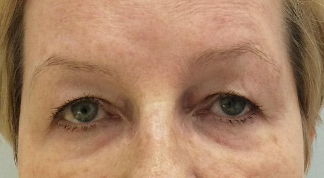 Maria-blefaroplastyka po Kaniowscy Clinic