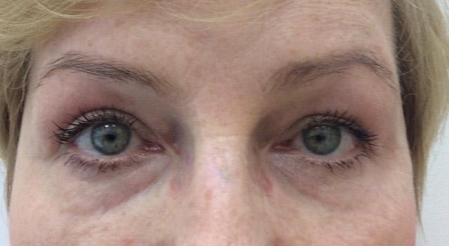 Maria blefaroplastyka po kaniowscy Clinic