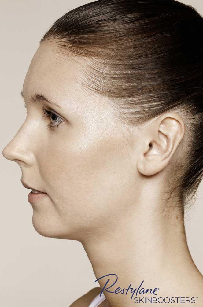 restylane skinboosters efekt po policzki