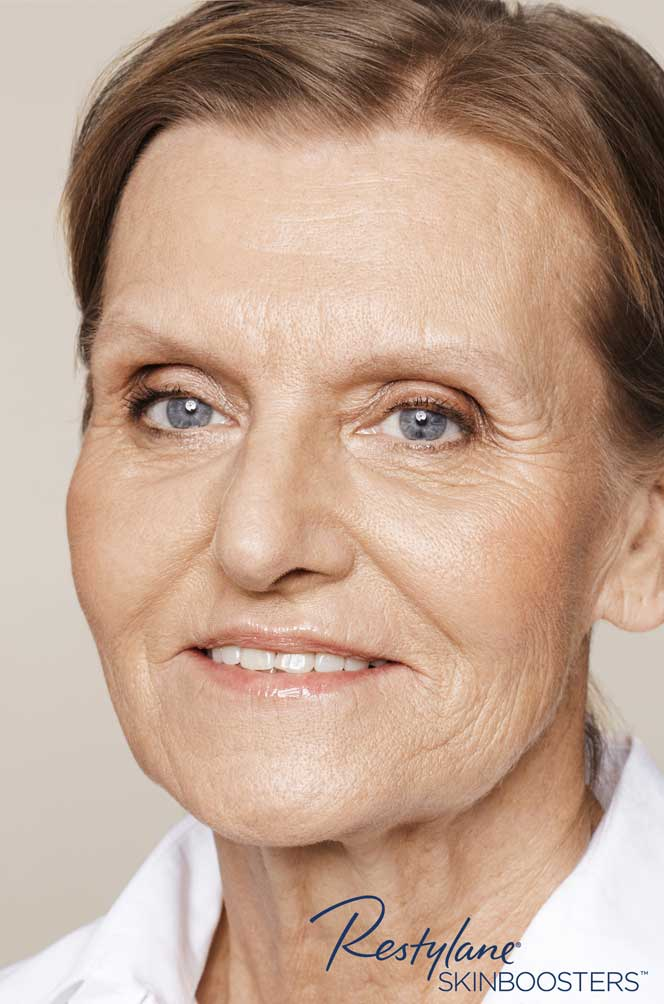 restylane skinboosters efekt po twarz kaniowscy clinic wrocław