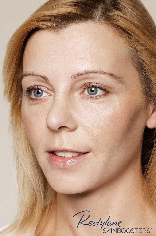restylane skinboosters efekt po twarz kaniowscy clinic
