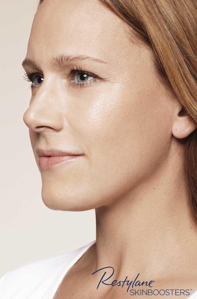 restylane skinboosters efekt po twarz kaniowscy