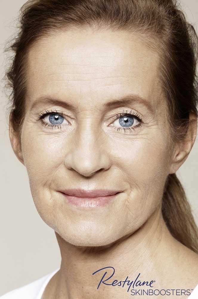 restylane skinboosters efekt po twarz