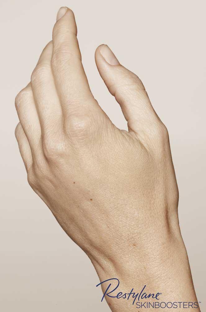 restylane skinboosters efekt przed i po ręka kaniowscy clinic wrocław