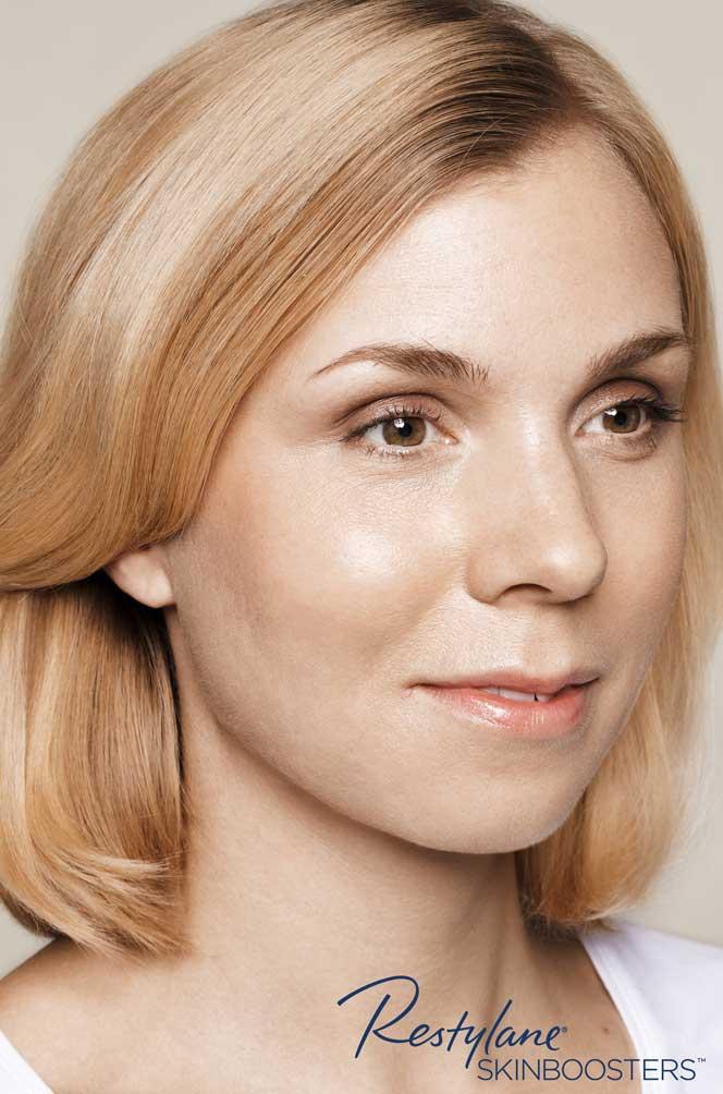 restylane skinboosters efekt przed i po twarz kaniowscy clinic wrocław