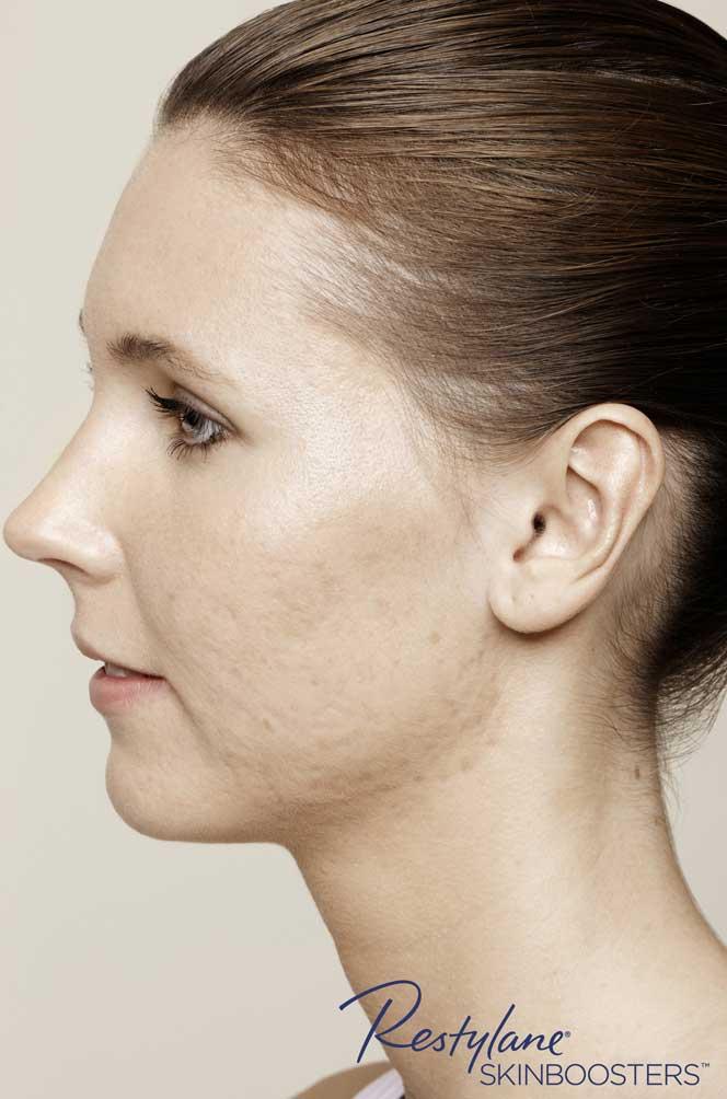 restylane skinboosters efekt przed policzki