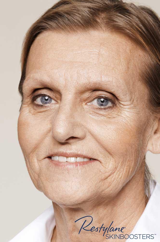 restylane skinboosters efekt przed twarz kaniowscy clinic wroclaw