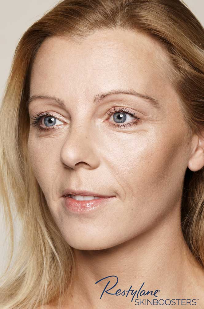 restylane skinboosters efekt przed twarz kaniowscy clinic