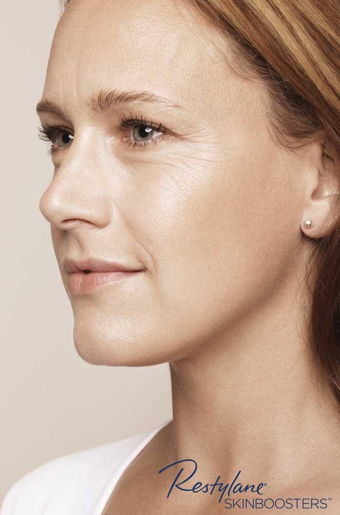 restylane skinboosters efekt przed twarz kaniowscy