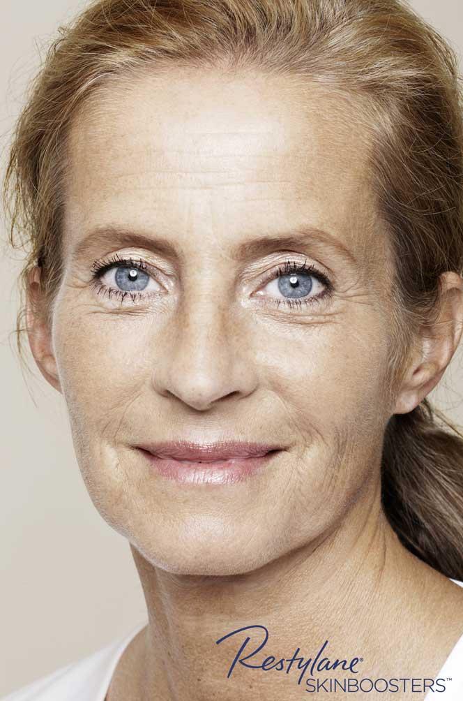 restylane skinboosters efekt przed twarz