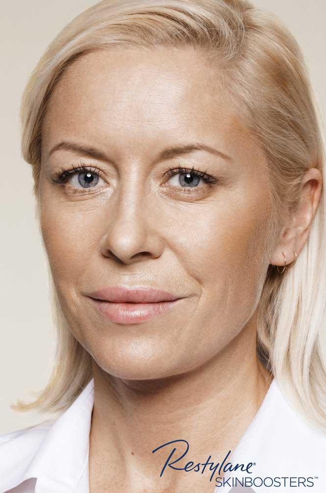 restylane skinboosters efekt zabiegu przed i po twarz kaniowscy clinic