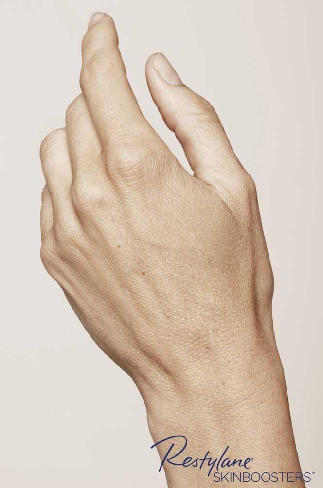restylane skinboosters efekty przed i po ręka kaniowscy clinic wrocław