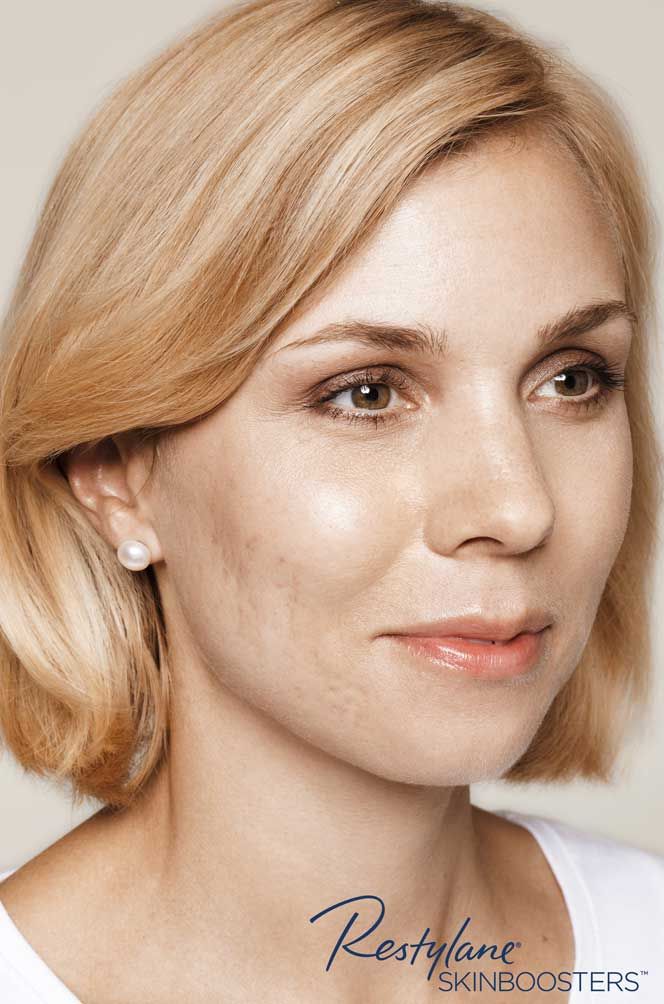 restylane skinboosters efekty przed i po twarz kaniowscy clinic wrocław