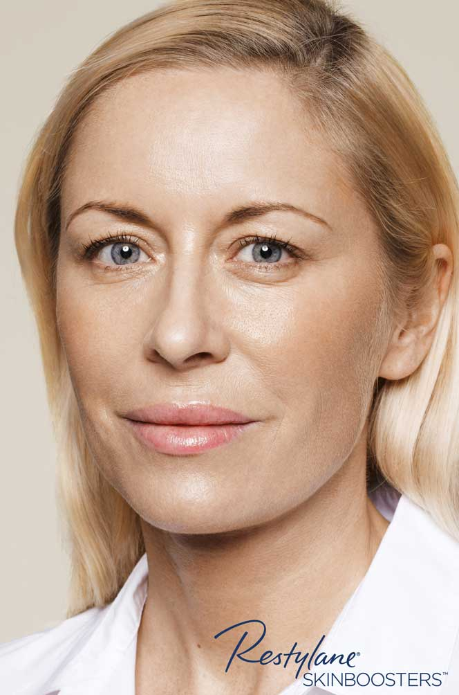 restylane skinboosters efekty zabiegu przed i po twarz kaniowscy clinic