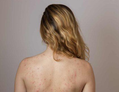 Laserowe leczenie trądziku Kaniowscy Clinic
