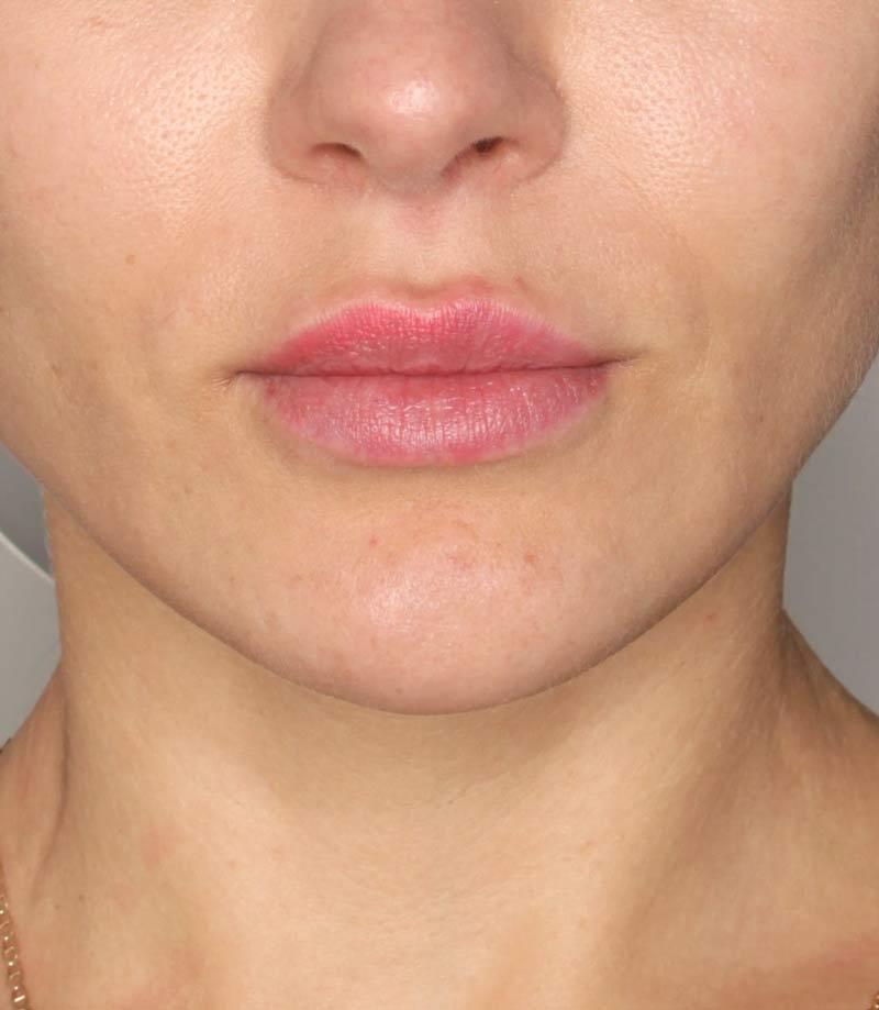 Efekty zabiegu nawilżanie ust Kaniowscy Clinik po
