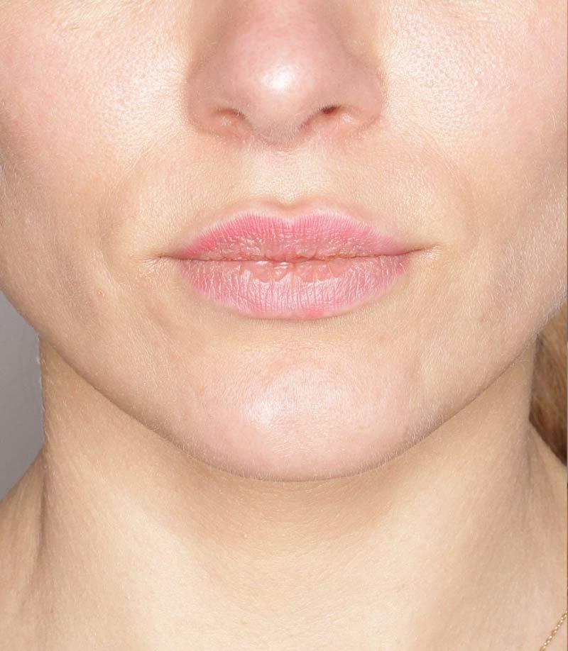 Efekty zabiegu nawilżanie ust Kaniowscy Clinik przed