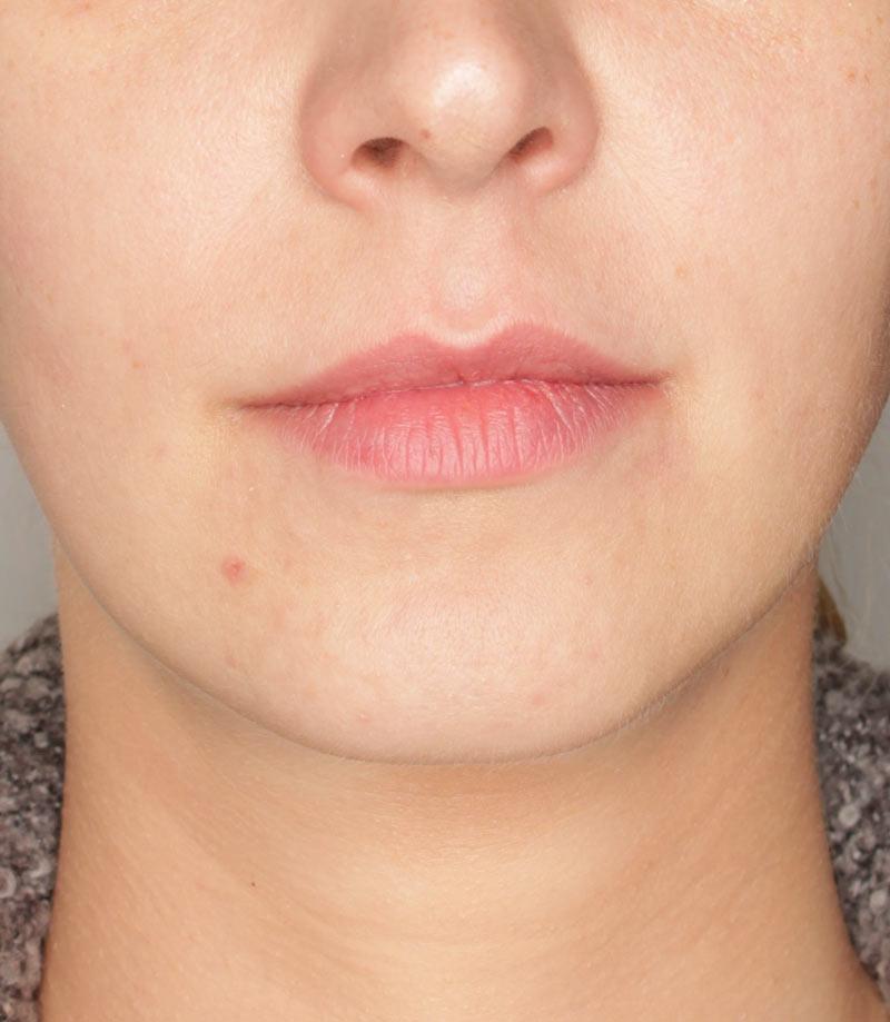 Efekty zabiegu nawilżanie ust Wrocław Kaniowscy Clinic-po