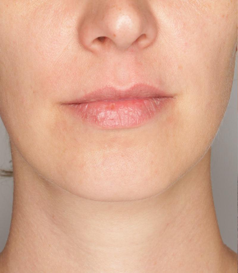 Efekty zabiegu nawilżanie ust Wrocław Kaniowscy Clinic przed
