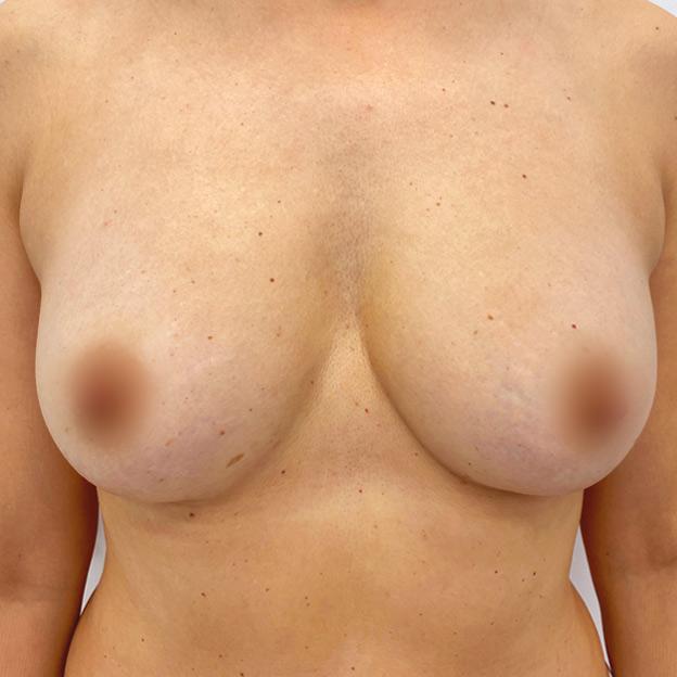adivive piersi po zabiegu kaniowscy clinic