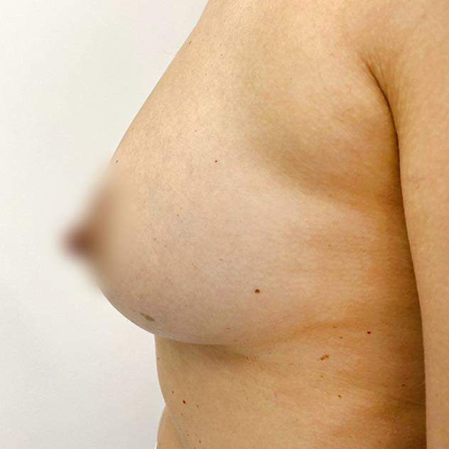 adivive piersi po zabiegu kaniowscy