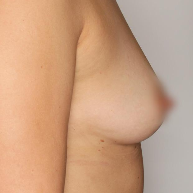 adivive piersi przed zabiegiem kaniowscy clinic profil