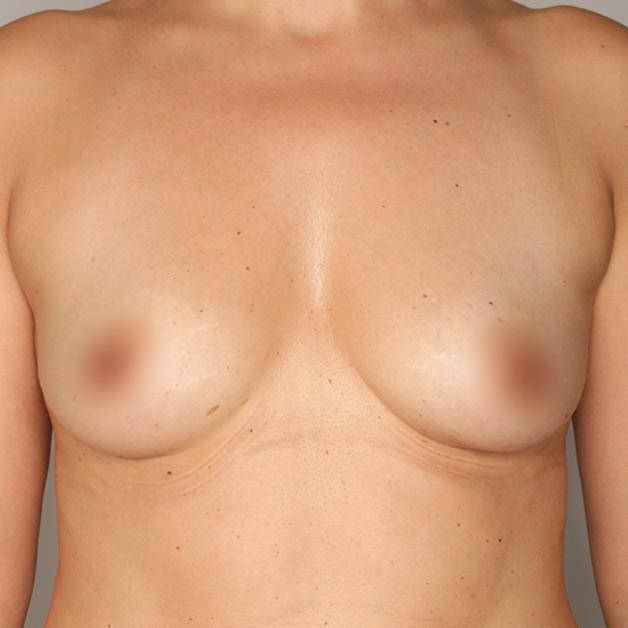 adivive piersi przed zabiegiem kaniowscy clinic