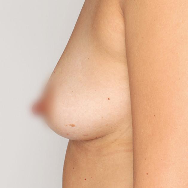 adivive piersi przed zabiegiem kaniowscy