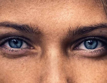 Korekcja powiek dolnych worków pod oczami Kaniowscy Clinic