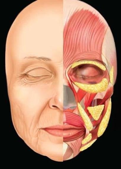 Niechirurgiczny trwaly lifting twarzy Kaniowscy Clinic anatomia twarzy
