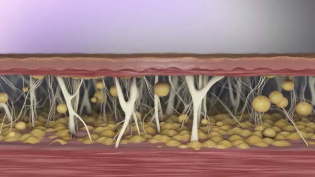 Renuvion metoda poprawy struktury skóry zabieg wrocław Kaniowscy