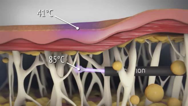 Renuvion metoda poprawy struktury skóry zabieg wrocław