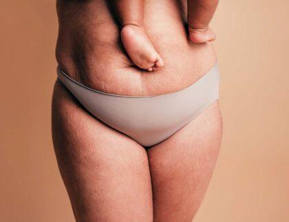 nadmiar tkanki tluszczowej po ciąży