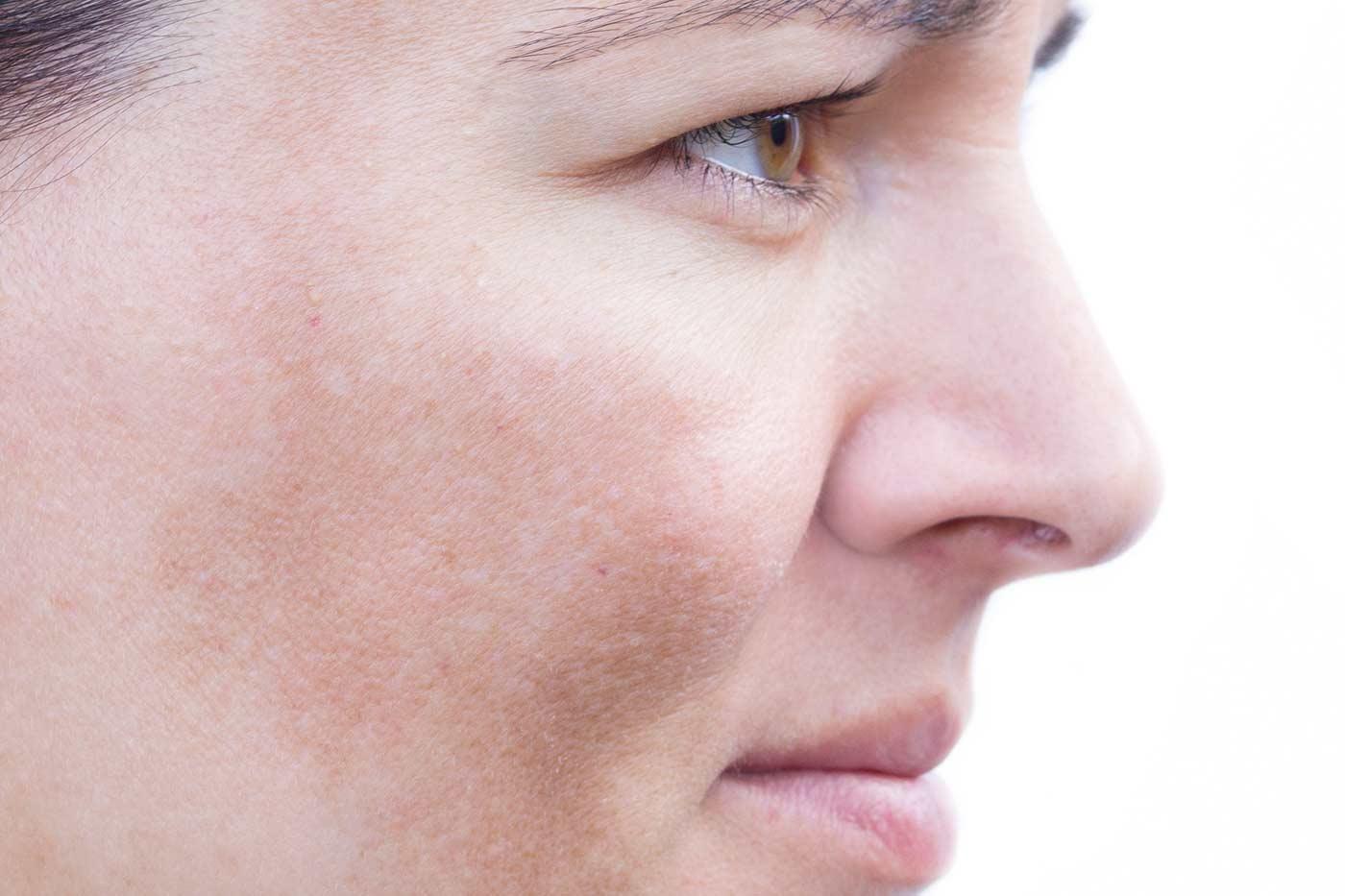 Przebarwienia melaninowe Kaniowscy Clinic