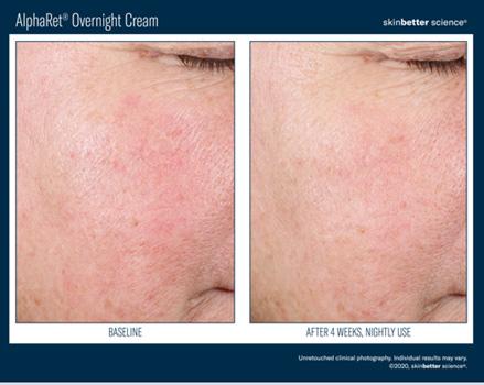 AlphaRet Overnight cream Kaniowscy Clinic efekty