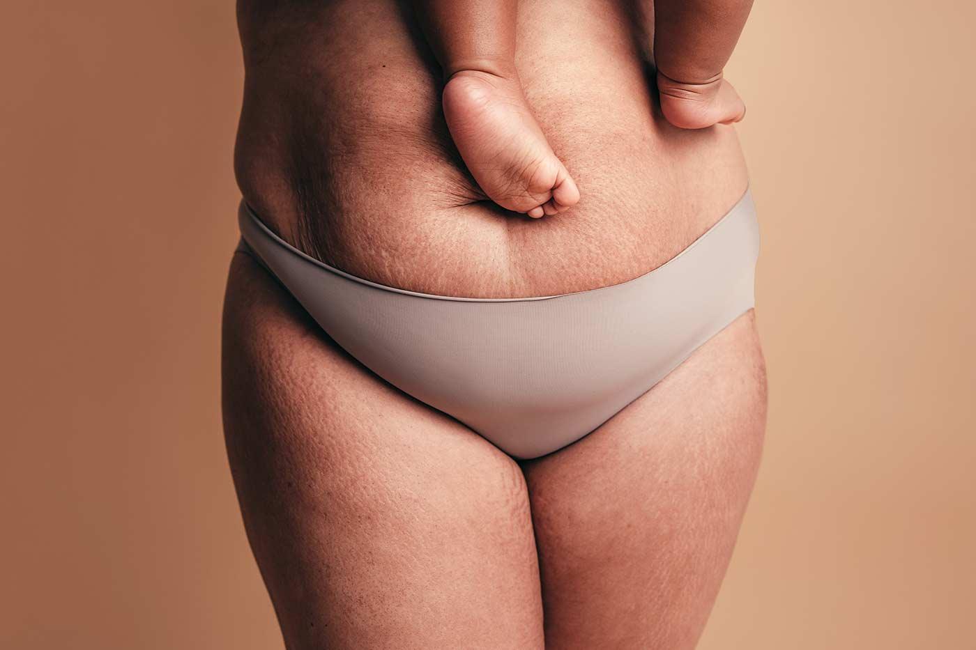Zabiegi na obwisłą skórę na brzuchu Kaniowscy Clinic