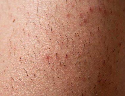 Zapalenie mieszków włosowych na nogach Kaniwoscy Clinic