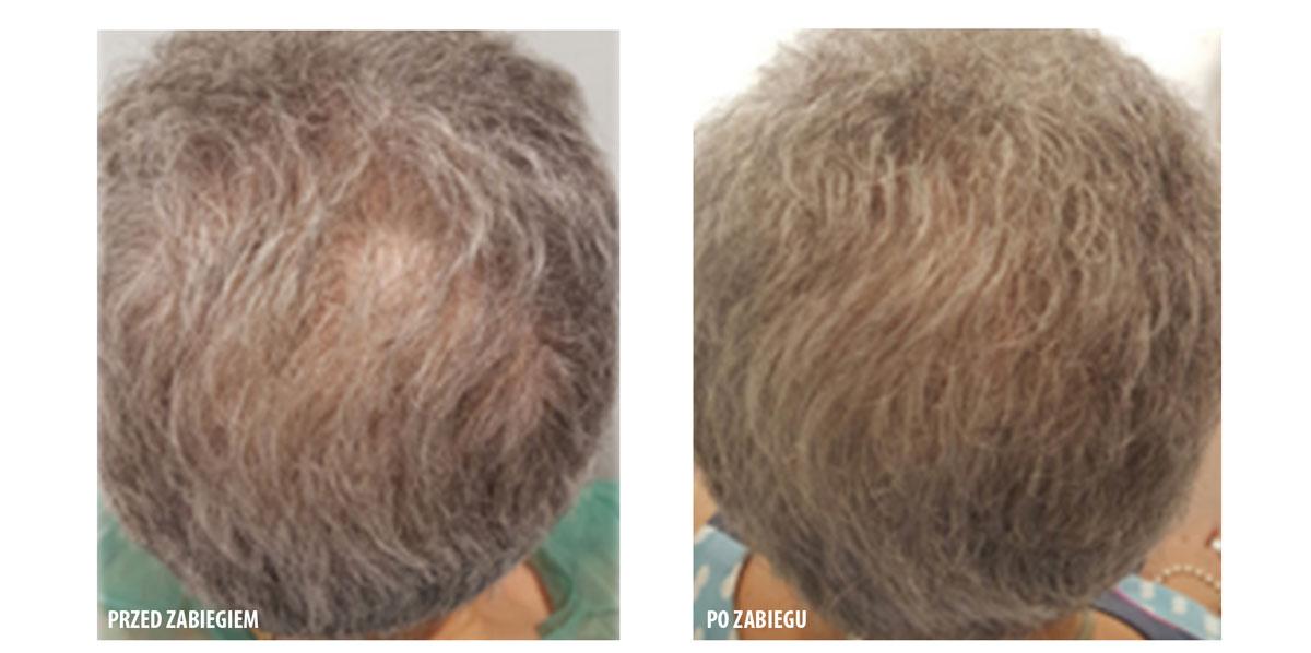 leczenie łysienia przed i po zabiegu small