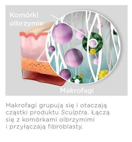 sculptra dzialanie preparatu kaniowscy clinic 4