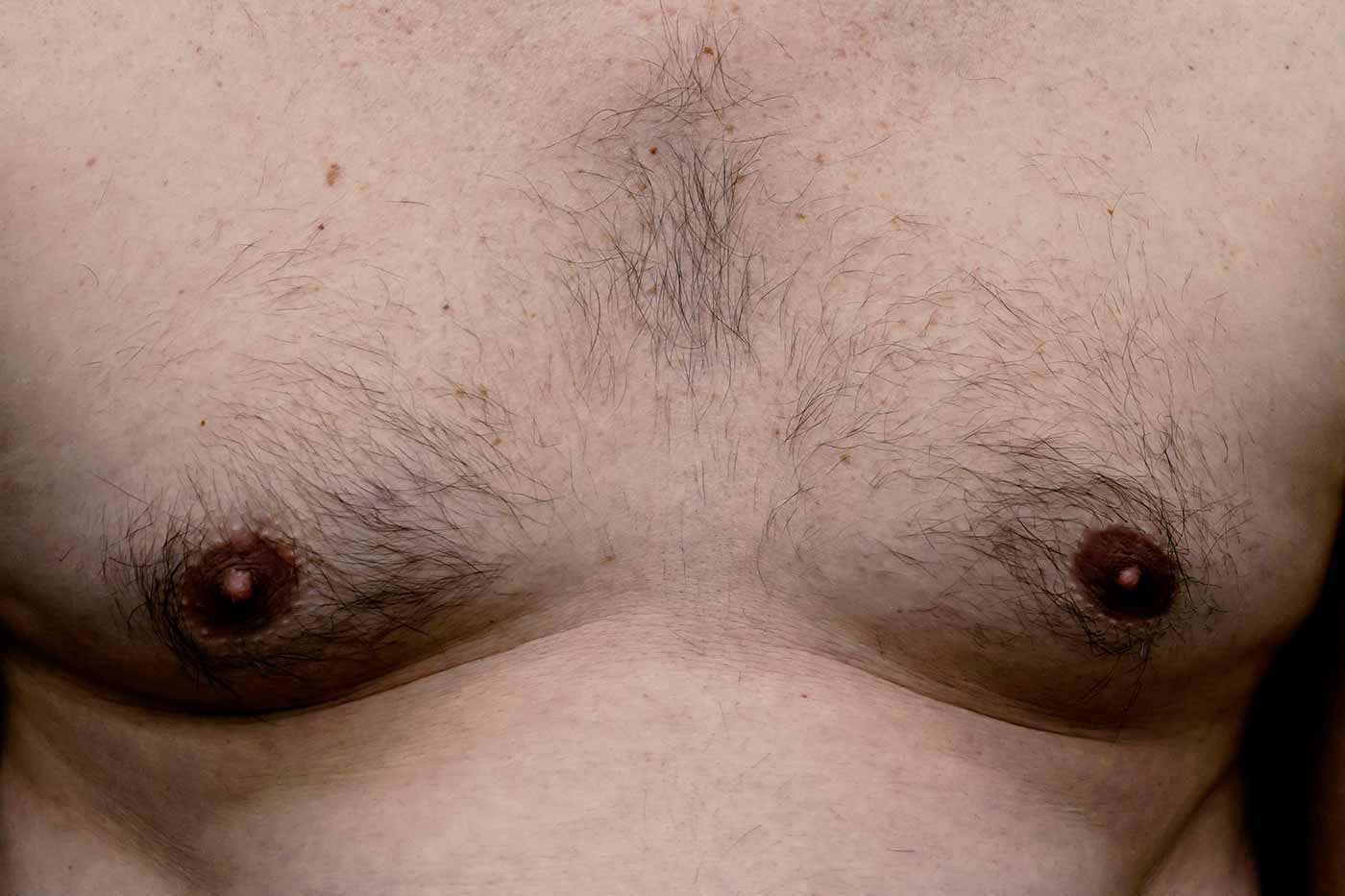 Zabieg na lipomastię Kaniowscy Clinic