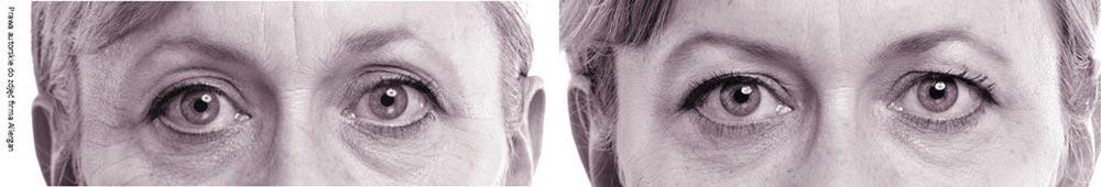 Zabiegi pod oczy - efekt przed i po