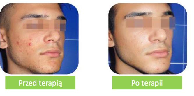 acnelan przed i po terapii
