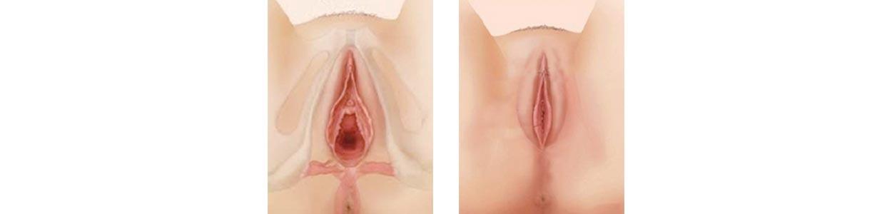 vaginal narrower przed i po