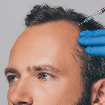 problemy medyczne wypadanie włosów
